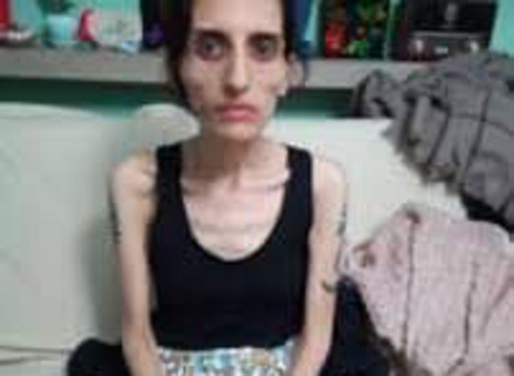 Τουρκία: Πέθανε η τραγουδίστρια του Grup Yorum μετά από απεργία πείνας